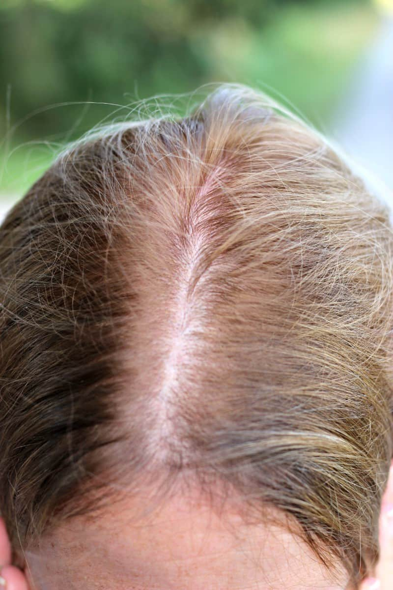Women's ROGAINE® Foam for Hereditary Hair Loss