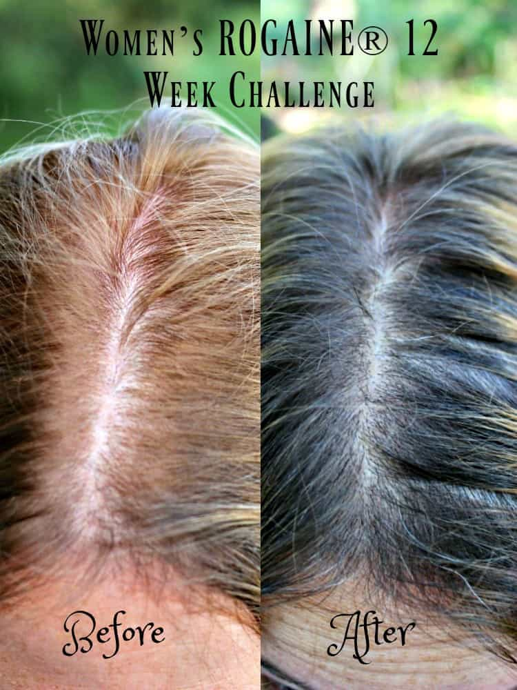 Women S Rogaine 174 For Thinning Hair Midlife Healthy Living