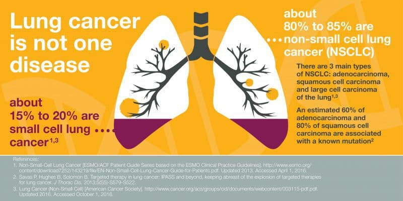 Navigating a Lung Cancer Diagnosis